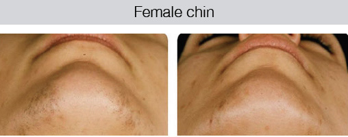female-chin