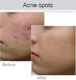 ipl-acne