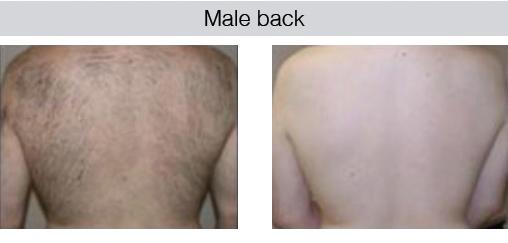 male-back