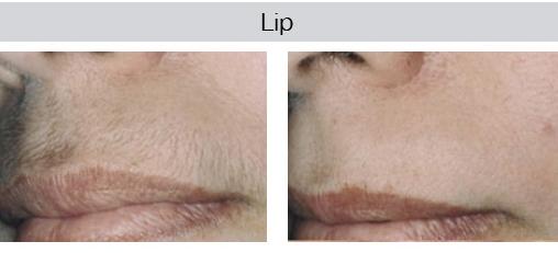 male-lip