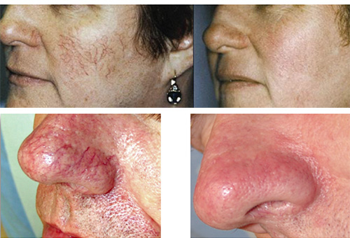 steroid creams for face rash
